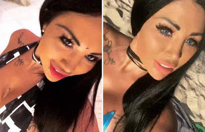 32-year-old model and star Instagrama blind after surgery to change eye color
