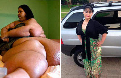The heaviest woman in the world managed to lose 400 kg