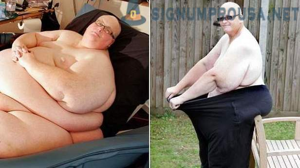 Fattest man of the planet has lost 292 kilograms